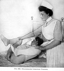 Nurse positioning the mother's legs so obstetrician can perform a vaginal exam
